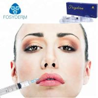 China OEM Injectable for Lip Enhancement Hyaluronic Acid Dermal Filler 1ml Injection wholesale