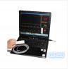 China 2015 HOT sale based usb pulse oximeter wholesale